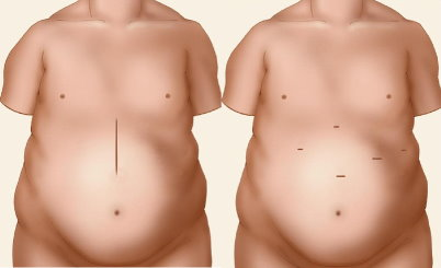 Cirurgia Convencional x Cirurgia Laparoscópica